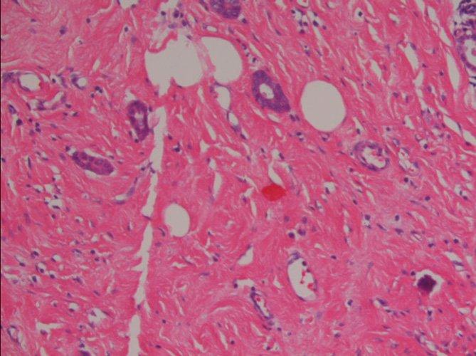 borst gezwel kanker foto