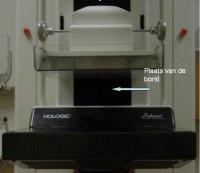 Mammografie apparaat