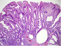 Gastric polyp