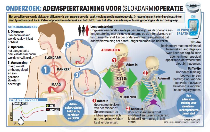 PREPARE studie in De Telegraaf